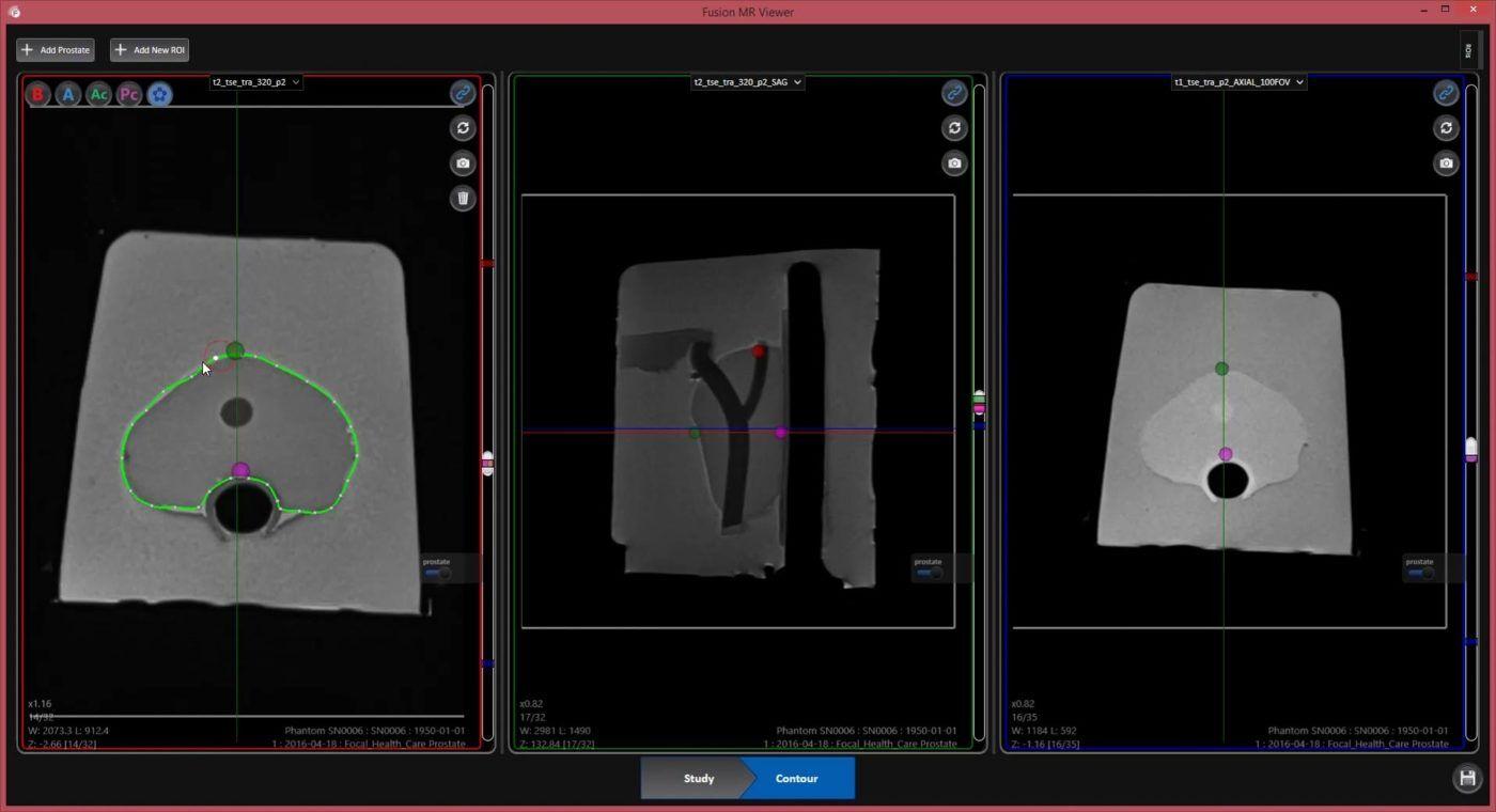 Screen capture from Fusion MR software- segmenting MRI