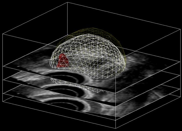 MRI US construct aligned registration
